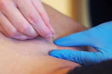 Kinesitherapie Jane Alexnat - Dry Needling